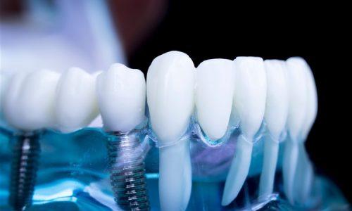 Dental Implants Blog PWD (1500 x 1000) (750 x 500)