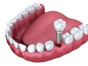 dental-implants-langford (175 x 131)