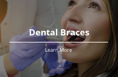 Dental Braces PWD