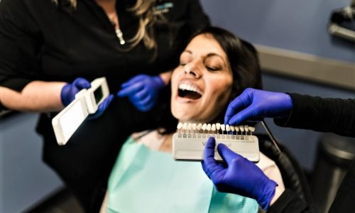 teeth-whitening-langford